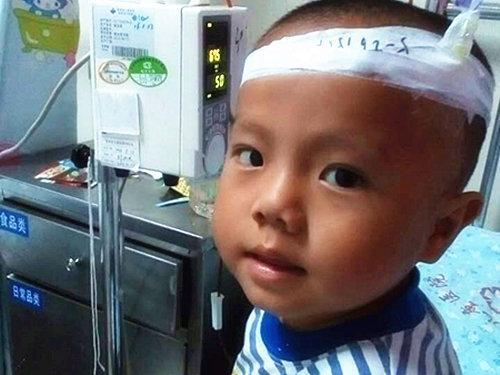 为了治疗孩子的贫血症,几年时间里爸妈带鑫鑫在广东的广州和惠州、湖南怀化、河北邢台各大医院不断奔波辗转。用尽了保守治疗、定期输血甚至中医治疗等方法,但他的病情仍在不断加重,并出现脾脏肿大如球的状况。无奈父母带他住进中南大学湘雅医院重换治疗方案先消除脾肿再进行后续治疗。
