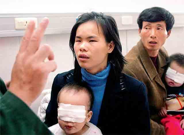 小南出生一个多月时,细心的母亲发现了他眼部的异常,由于家庭贫困,幼小的生命渐渐陷入一片黑暗。小南八个月时,启明行动医疗队入村筛查,小南被诊断为先天性白内障,启明行动医疗队为小南实施了复明手术。如今活蹦乱跳的小南也许并不会记得这幸运的经历,但他的人生却悄然间发生了改变!